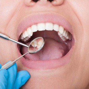 Hill City Dental Comprehensive Dental Exam