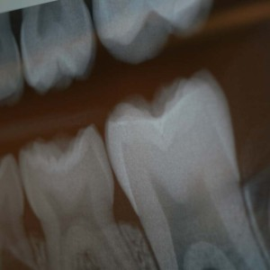 Hill City Dental X-Rays
