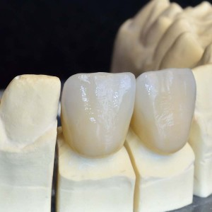 Hill City Dental Crowns