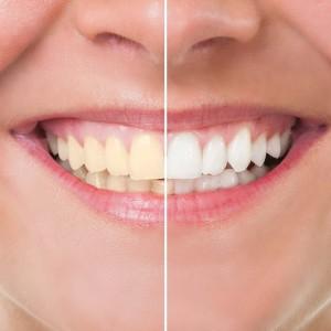 Hill City Dental Teeth Whitening